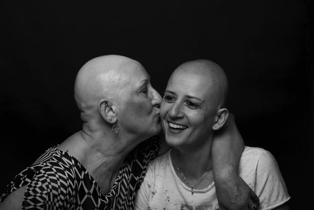 L'alopecia areata fa ormai parte di me e cerco di trasformarla in risorsa, in opportunità.